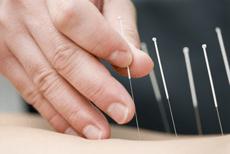 Photo d'aiguilles lors d'une séance d'acupuncture