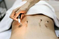 Séance de Moxibustion, méthode pour réchauffer des points corporels